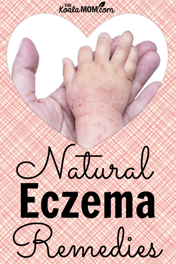 Natural Remedies For Bad Baby Eczema